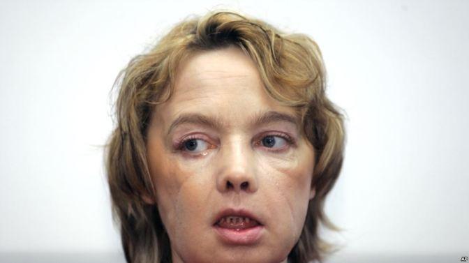 Muere primera paciente de trasplante de rostro